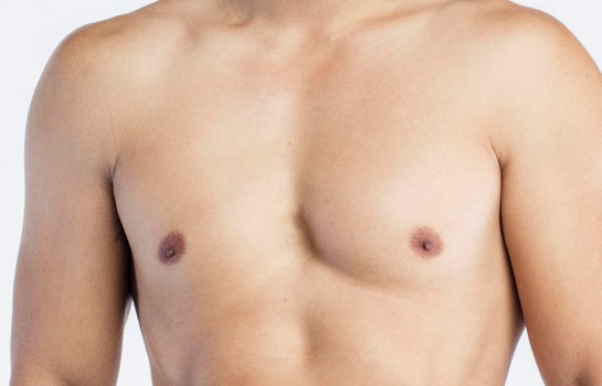 Gynecomastia And What You Should Know