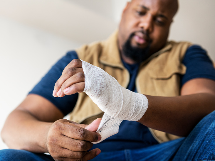 First Aid for common injuries: burns and nosebleeds